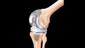 Titanium Alloy Orthopedic Components