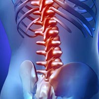 Laminectomy Surgery Services
