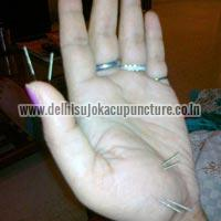 Sujok Acupuncture Therapy