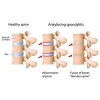 Yoga Treatment for Ankylosing Spondylitis