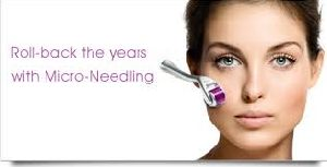 Micro Needling Treatment