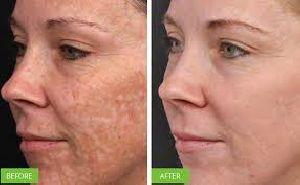 Photo Rejuvenation Treatment
